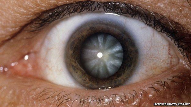 白内障眼球图片_眼睛白内障手术多少钱【相关词_ 白内障手术后眼睛模糊】