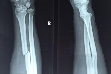 骨折了喝骨头汤到底有没有用?骨折恢复分三个时期,饮食大不相同