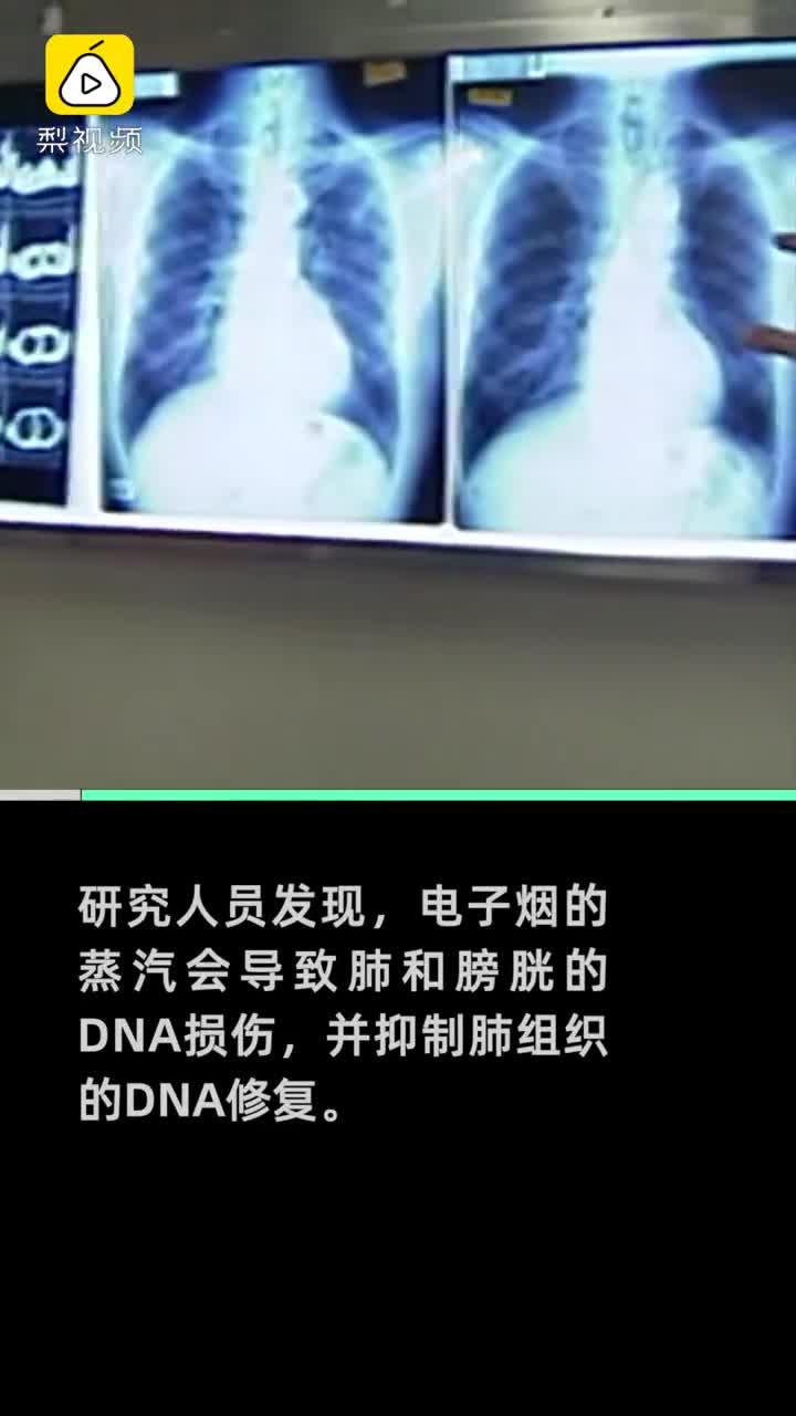 """""""电子烟可导致肺癌膀胱癌""""的图片搜索结果"""
