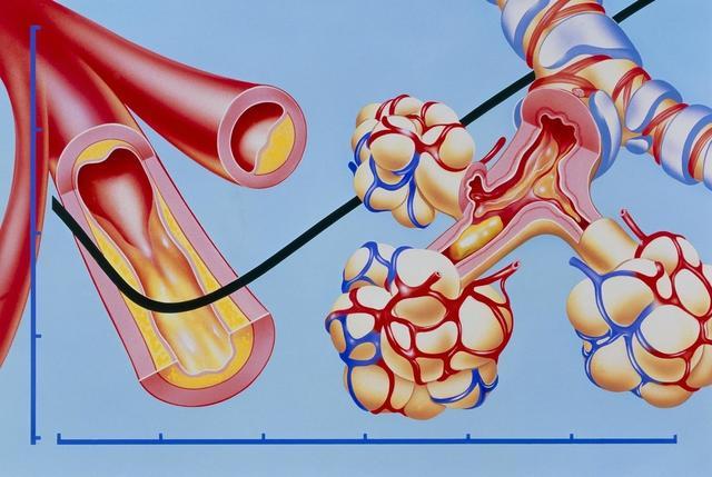 身体2处疼痛,可能是血管堵了,多做4事降血脂,不给血管添堵